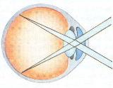 oog van de mens